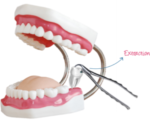 dental-extraction